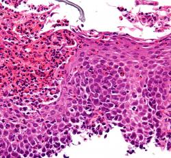 4.Zoom sur l'œsophagite à éosinophiles